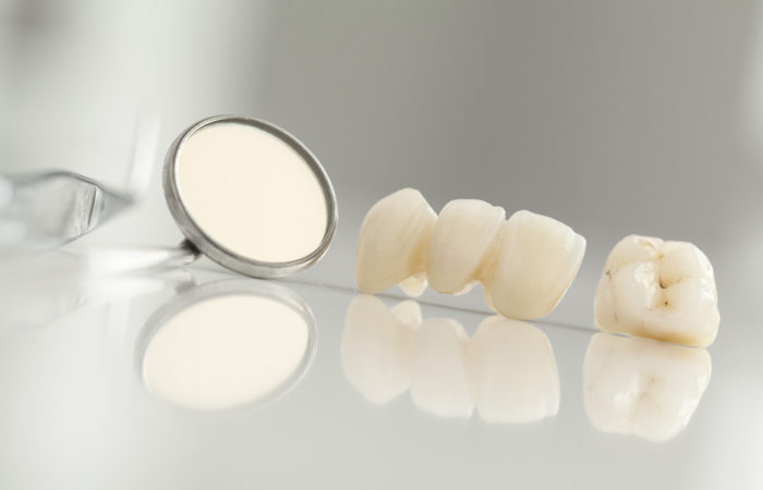 dental crown and bridge services