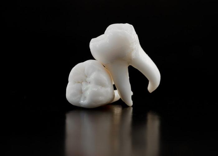 wisdom teeth services