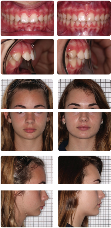 Non-surgical jaw correction